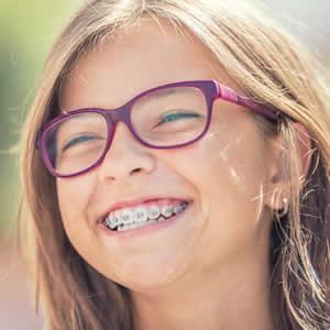 Smilezdoc orthodontics and braces Childrens Dentistry of Arlington